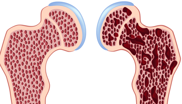 I malati di osteoporosi, non essendo la malattia riconosciuta come cronica, non hanno diritti. Ci sono però delle categorie per cui sono previsti esami diagnostici e cure a carico del SSN.