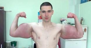 Giovane-russo-Braccio-di-Ferro-si-inietta-sostanze-nei-muscoli-deformati-e-rischia-lamputazione-768×432