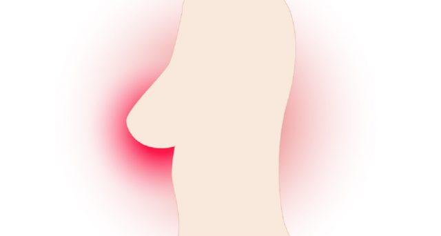 Un ultimo studio internazionale dimostra che bloccando l'enzima MMP9 è possibile arrestare la proliferazione delle metastasi del tumore al seno.